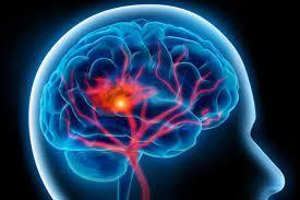 Sandoz promove curso EAD sobre inovação no tratamento de Doenças Cerebrovasculares